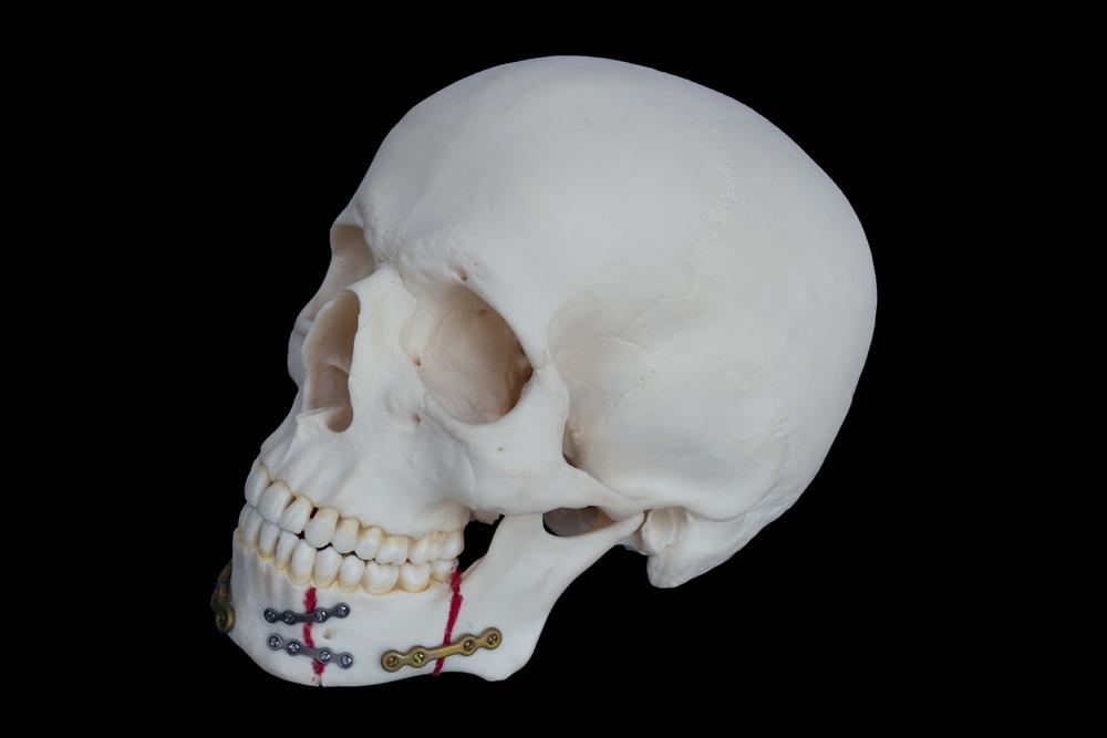 頭蓋骨骨折 後遺症 頭痛
