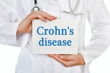 クローン病の症状と合併症の特徴 ― どんなに兆候に注意すればいい?