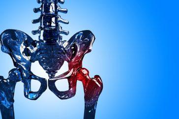 変形性股関節症の原因とは?予防方法はあるの?