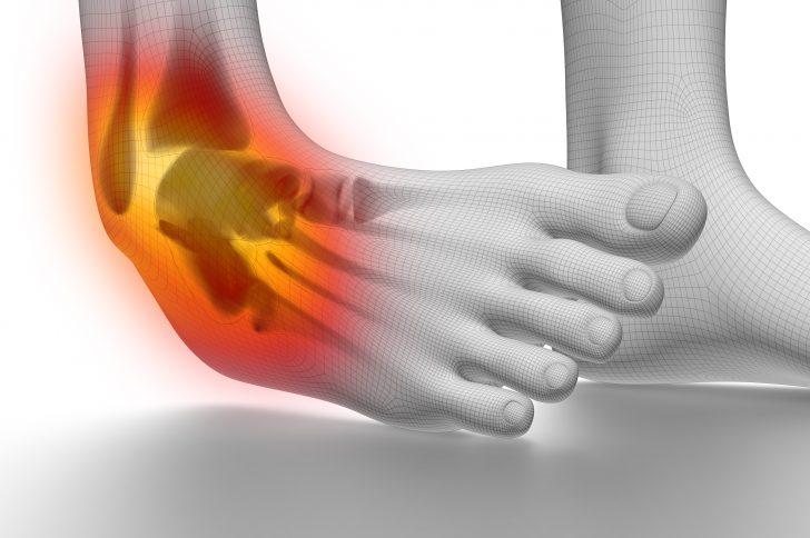 「足の捻挫」の画像検索結果