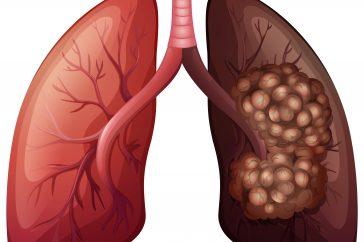 肺がんの症状の特徴とは!?タバコ以外に原因はあるの?