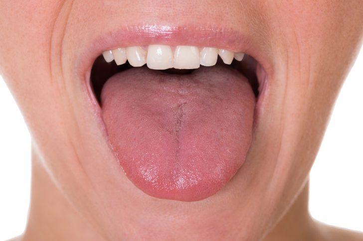 医師監修】舌癌は早期発見できれ...