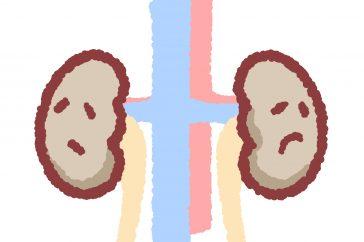 腎結石の治療法は、結石の大きさによって違う!どんな方法があるの?
