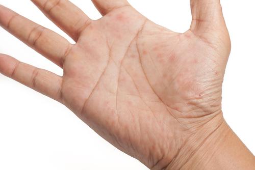 手のひら が かゆい 湿疹 なし 手湿疹の治し方症例写真・症状・原因・治療法