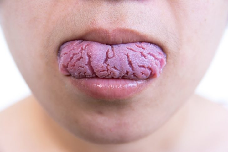 痛い 真ん中 舌 の が