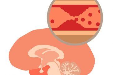 脳塞栓症の症状と再発予防の方法とは?