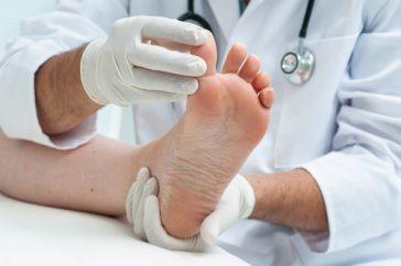 皮膚の真菌症とは? どんな症状が出るの?
