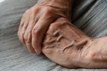 ヘバーデン結節の発症は予防できる?症状の悪化を食い止めるには?