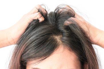 冬にフケが増えるのは頭皮の乾燥が原因かも!?